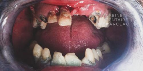 Avant - Cas Clinique - Cabinet Dentaire Marceau Montreuil