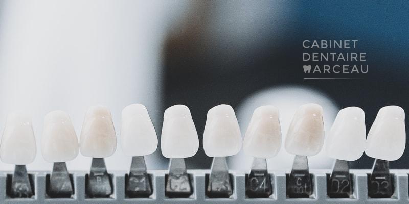 Facettes et blanchiment - Cabinet Dentaire Marceau à Montreuil
