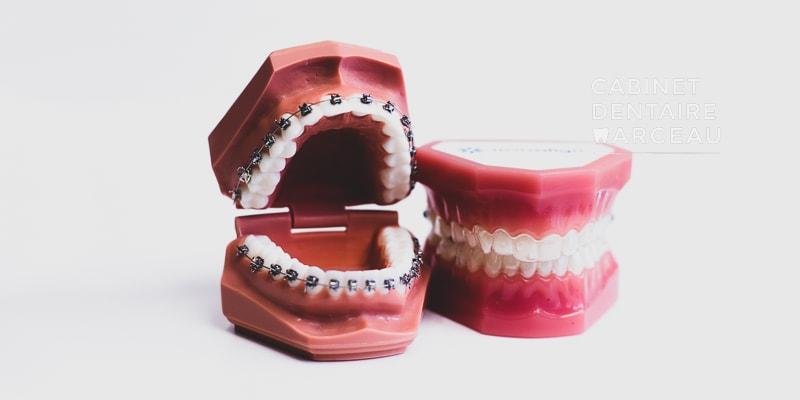 Appareil dentaire - Cabinet Dentaire Marceau à Montreuil